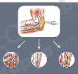 De Pijn van de Drukgolf verlicht de Apparatuur van de Therapie van de Golf van de Elektrische schok van de Machine