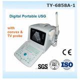 Scanner portatif d'ultrason de vente chaude du principal 1 avec du ce, certificat ISO13485