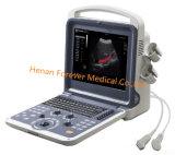 Ultra-som portátil à mão médico de Doppler da cor do equipamento 3D 4D do Ce