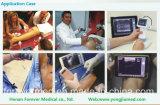 2017 Smartphone sans fil échographe pour l'anesthésiologie crevaison