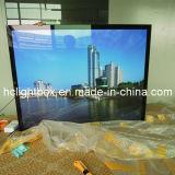 Caixa leve Backlit fixada na parede da foto do retrato do diodo emissor de luz