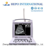 Ultrason portatif de Digitals de scanner de la vente chaude B&W