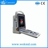 Scanner portatif d'ultrason avec de diverses sondes