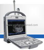 Equipamento médico / hospitalar Scanner de ultra-som portátil em B / W para humanos
