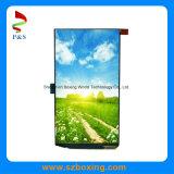 5,5-дюймовый сенсорный экран цветной OLED с 720 (RGB) x 1280