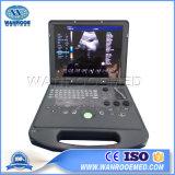 Оск60 Медицинское Оборудование портативных беременности цветного доплеровского ультразвукового сканера машины