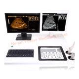 Scanner medico pieno di qualità superiore di ultrasuono di Digitahi con il PC