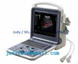 3D цветового доплера Ultrasoundgraph (ЗГС) ультразвуковой системы диагностики