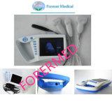 Yj-U100full DIGITAL Palm Ultrasound Scanner