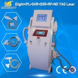 A mais nova tecnologia IPL ND RF Máquina de remoção de pêlos a laser YAG (Elight03)