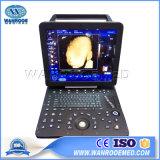 Usc300工場価格2D/3Dハイエンド携帯用カラードップラー超音波機械