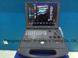 볼록한, 선형 탐침을%s 가진 가득 차있는 디지털 3D 초음파 스캐너 색깔 도풀러