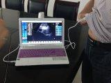 Sonde abdominale d'ultrason de bonne qualité pour l'ordinateur portatif de tablette de système Windows