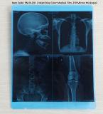 Digital-Farben-Röntgenfotografie-Tintenstrahl-Drucken-medizinischer x-Strahl-Film