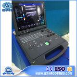 Usc60 Machine van de Scanner van de Ultrasone klank van Doppler van de Kleur van de Zwangerschap van de Apparatuur van het Ziekenhuis de Draagbare
