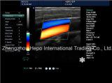 Grosse Förderung-Ultraschall-Ausrüstungs-Farbe Doppler