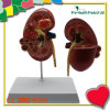 Disease Human Kidney Anatomy Model for Teaching