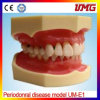 China Dental Supplies Periodonral Disease Model