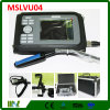 Medical Equipment Color LCD Palmtop Veterinary Ultrasound Scanner (MSLVU04)