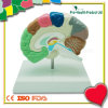 Medical Education Plastic Brain Model