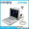 Ce Approved Portable Ultrasound Scanner Rus-9000b-Stella