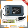 Medical Equipment Portable Veterinary Ultrasound Scanner (Farmscan M50)