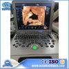 Usc60plus Portable Digital Ultrasound Machine with 3D Color Doppler