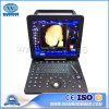 Usc300 Medical Device Laptop Scanner Equipment Portable Color Doppler Ultrasound Machine
