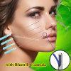 Ästhetischer medizinischer Gesichts-Anhebenzahn 3D stumpfen L Typen ab