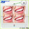 15-дюймовый монитор стоматологического обслуживания проводных устные камерной системы все в один VGA+видео+Hesperus USB