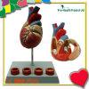 아테롬 플라스틱 인간적인 심혼 모형