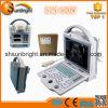Ultraschall-Maschinen beweglicher der Krankenhaus-Gebrauch-Ultraschalleinheit-/Sun-800W