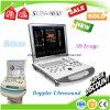 Scanner portatif d'ultrason de Doppler 3D4d de couleur de la Chine des prix raisonnables de Sun-906s