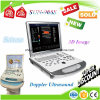 15 ultrason Doppler de machine de Doppler de couleur de pouce 2D/3D