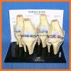 Het menselijke Model van de Pathologie van de Verbindingen van de Knie met de Medische Producten van de Plaat van de Beschrijving