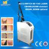 Singola macchina di rimozione del tatuaggio del laser del ND YAG dell'interruttore della lampada Q