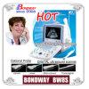Изготовление китайца Bondway Bw8s блока развертки ультразвука цифров