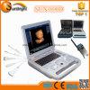 Strumentazione cardiaca della macchina dello scanner di ultrasuono di Doppler Digitahi di colore portatile medico del computer portatile di alta precisione Sun-800d per cuore
