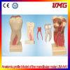 Modelo anatômico do perfil das fontes dentais de China do Molar mandibular
