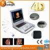 Scanner portatile di ultrasuono di Doppler di colore delle attrezzature mediche 4D di Sun-800e