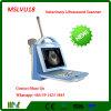 Cer anerkannter neuer Porbable Veterinärultraschall-Scanner (MSLVU18)