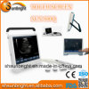 Wholesales Price 2D 3D Ob / Gyn Écran tactile 15 Ordinateur portable à ultrasons / Cardiac Portable B Mode Diagnostic Ultrasound Price