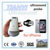 Punta de prueba sin hilos incorporada del ultrasonido de WiFi