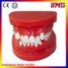 Ensino de Ortodontia Dental dentes modelo para modelo de tratamento