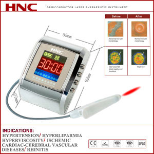 Watch Type Laser Therapeutic Equipment (HY30-D) pictures & photos