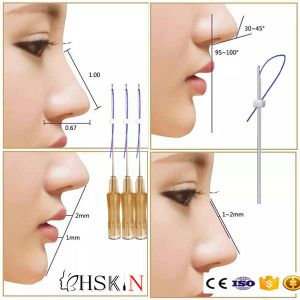 China Don′t Need Surgery Best Selling Blunt Nose Lifting Pdo