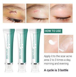Skin Treatment Cream