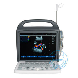 a New Professional Color Doppler Ultrasound System (DopScan M3) pictures & photos