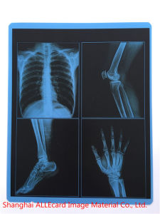 Dry X-ray Blue Film / Medical X-ray Film for Hospital pictures & photos