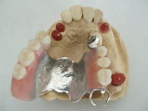 Co-Cr Alloy Dental Framework with Precious Attachments Made in China Dental Lab pictures & photos